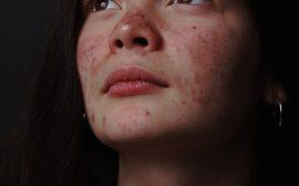 Soigner acné peau jeune fille